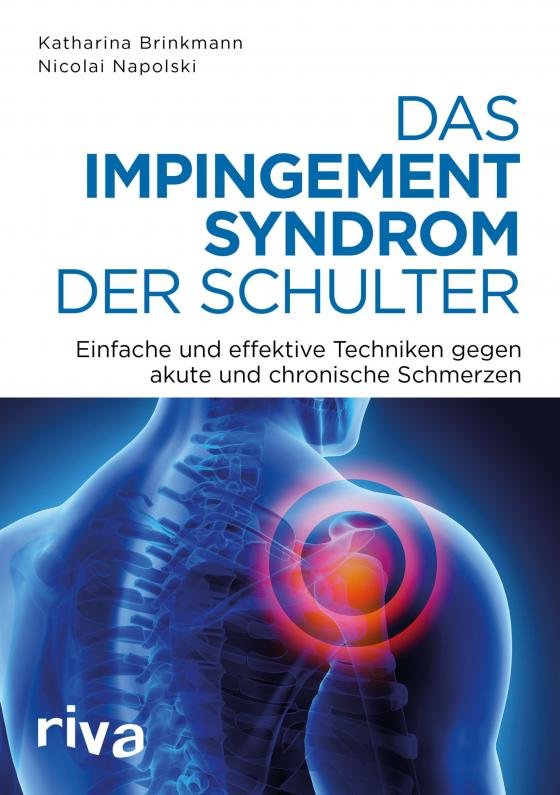 Cover-Bild Das Impingement-Syndrom der Schulter