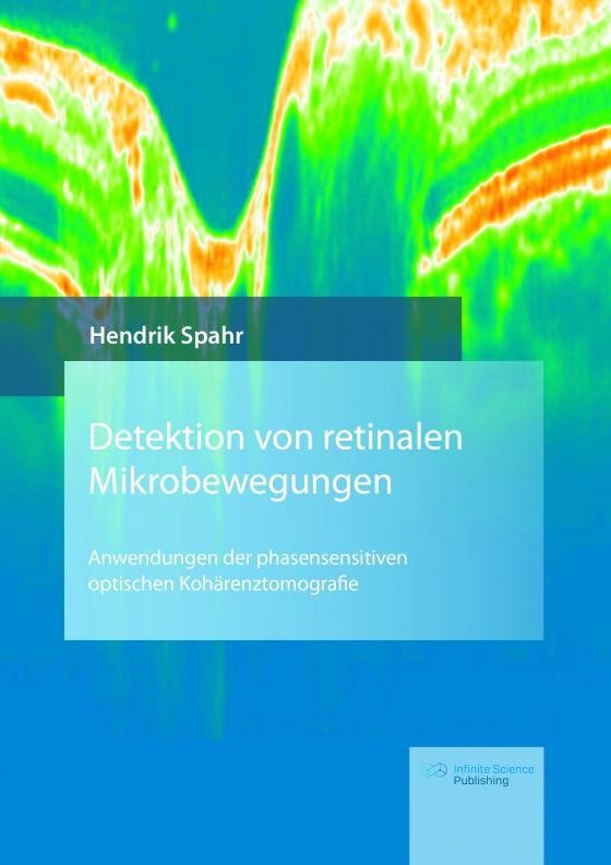 Cover-Bild Detektion von retinalen Mikrobewegungen