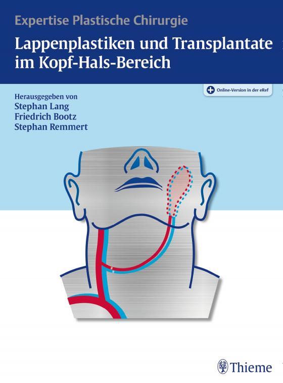 Cover-Bild Lappenplastiken und Transplantate im Kopf-Hals-Bereich