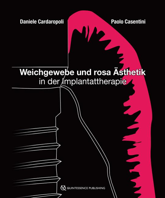 Cover-Bild Weichgewebe und rosa Ästhetik in der Implantattherapie