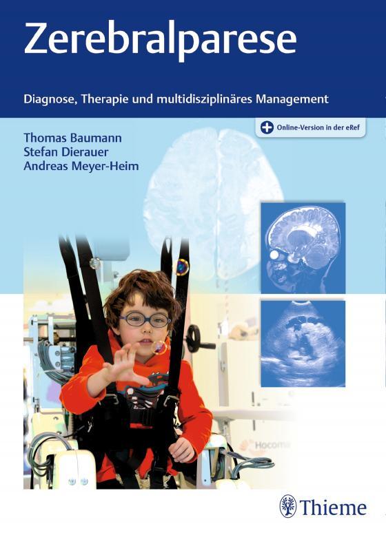 Cover-Bild Zerebralparese